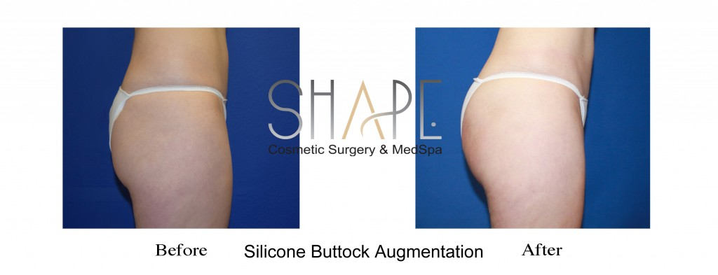 buttock augmentation plastic surgery